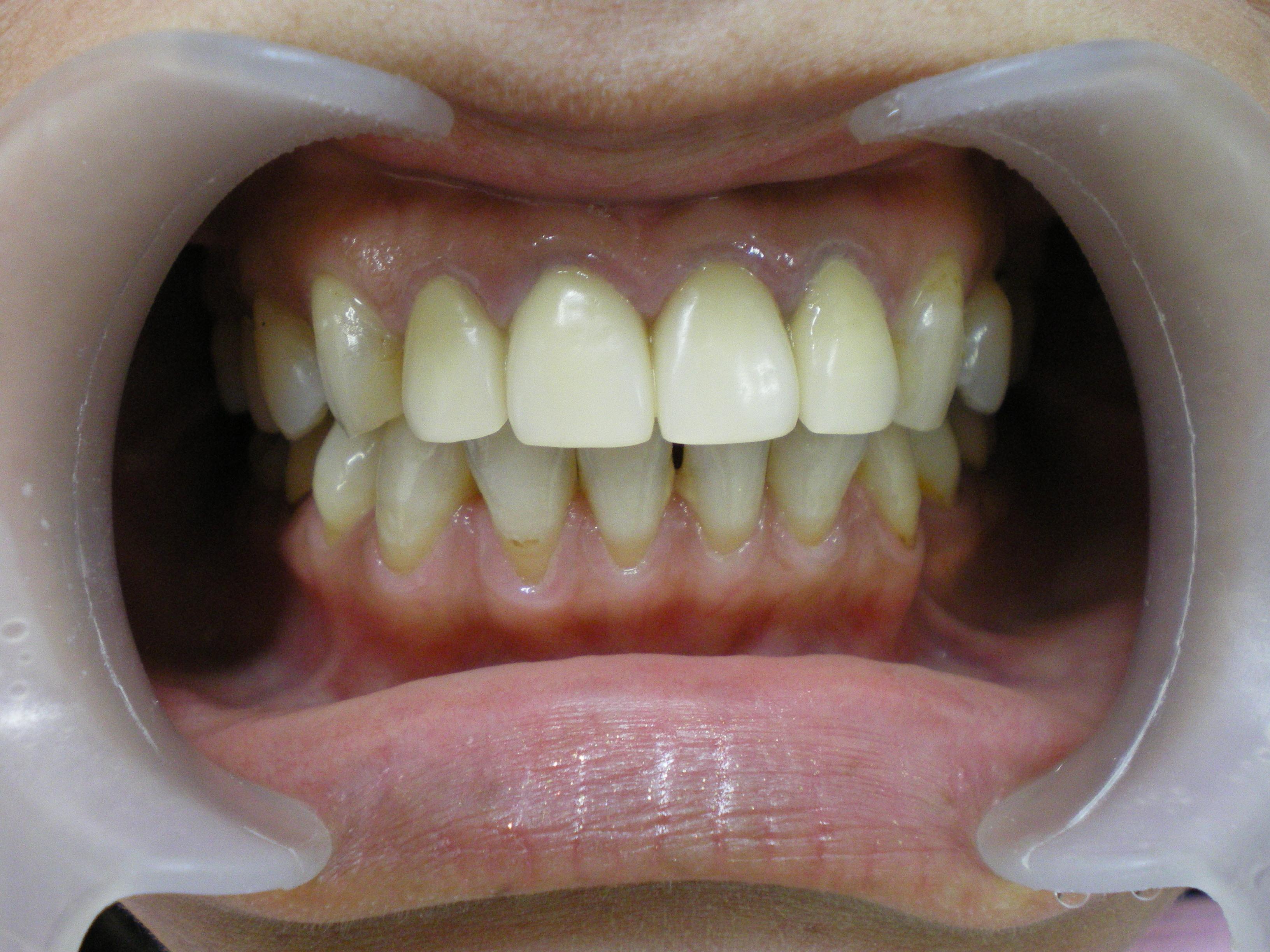 6前歯オルセラ術前.JPG