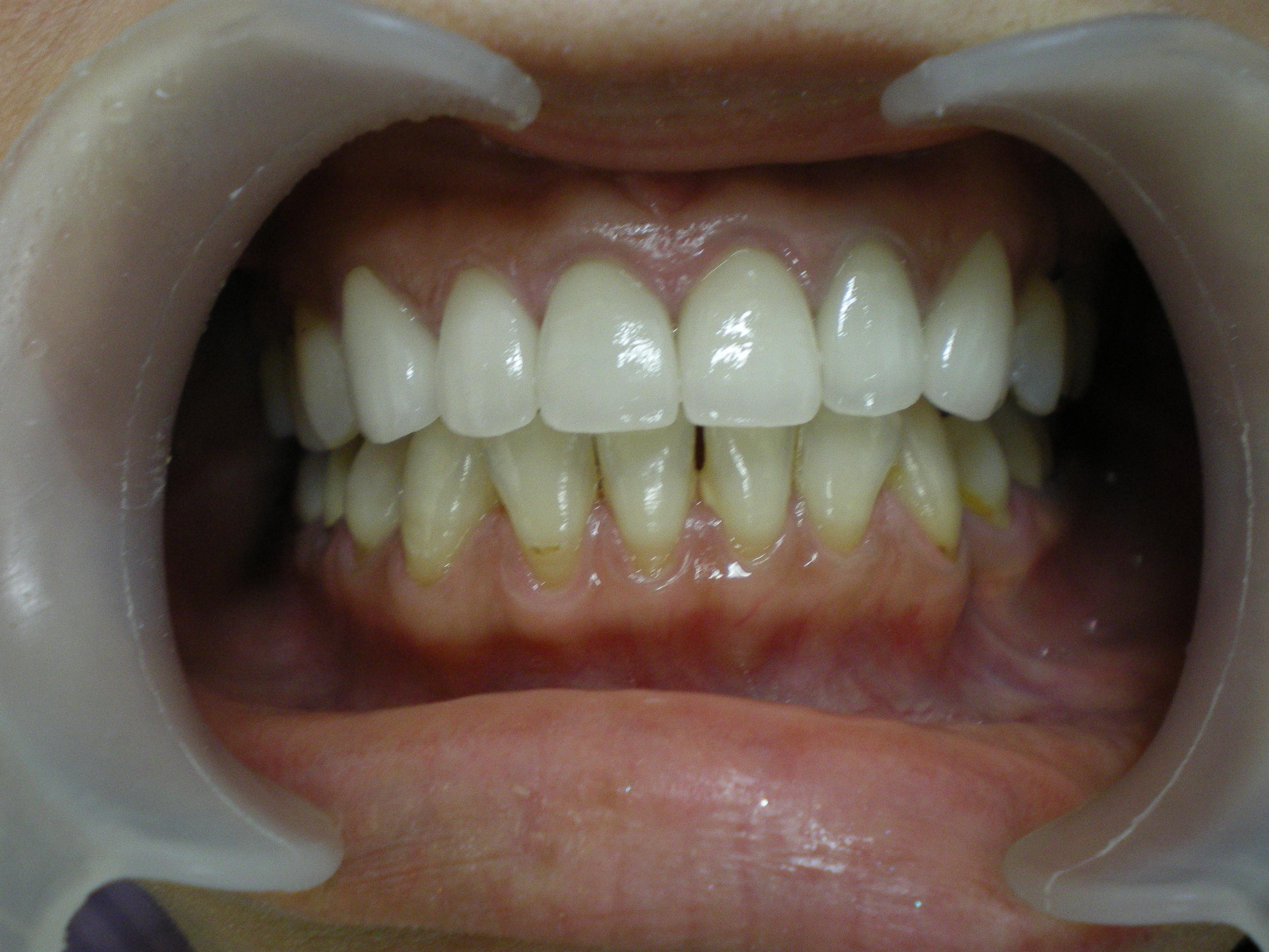 6前歯オルセラ.JPG